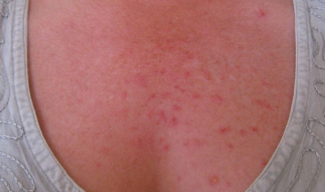 Pupp Pregnancy Rash-Coping with Pupps - Itchy Skin Rash
